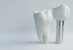 Animation of different types of implant dentures