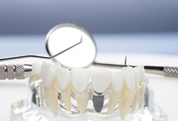 a model of a dental implant